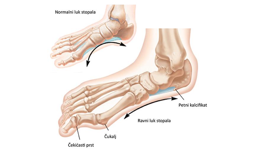 Istaknute vene su proširene vene, što ako vene na nogama postanu previše  vidljive?